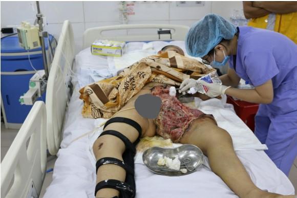 THƯ NGỎ Kêu gọi, giúp đỡ trước nỗi đau nát xương, nát thịt của em Lý Minh Hiếu, 15 tuổi, học sinh Lớp 10 A3, Trường THPT Trần Phú, Cúc Đường, Võ Nhai, Thái Nguyên