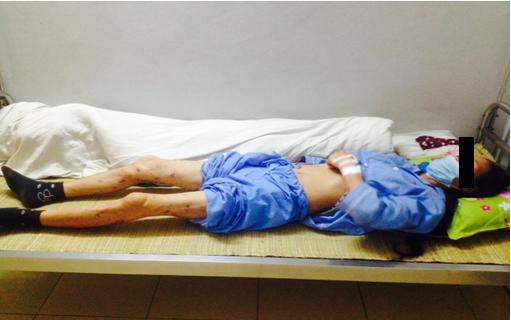Thái Nguyên : Khống chế và dập tắt nguy cơ bùng nổ dịch  nhiễm Não mô cầu